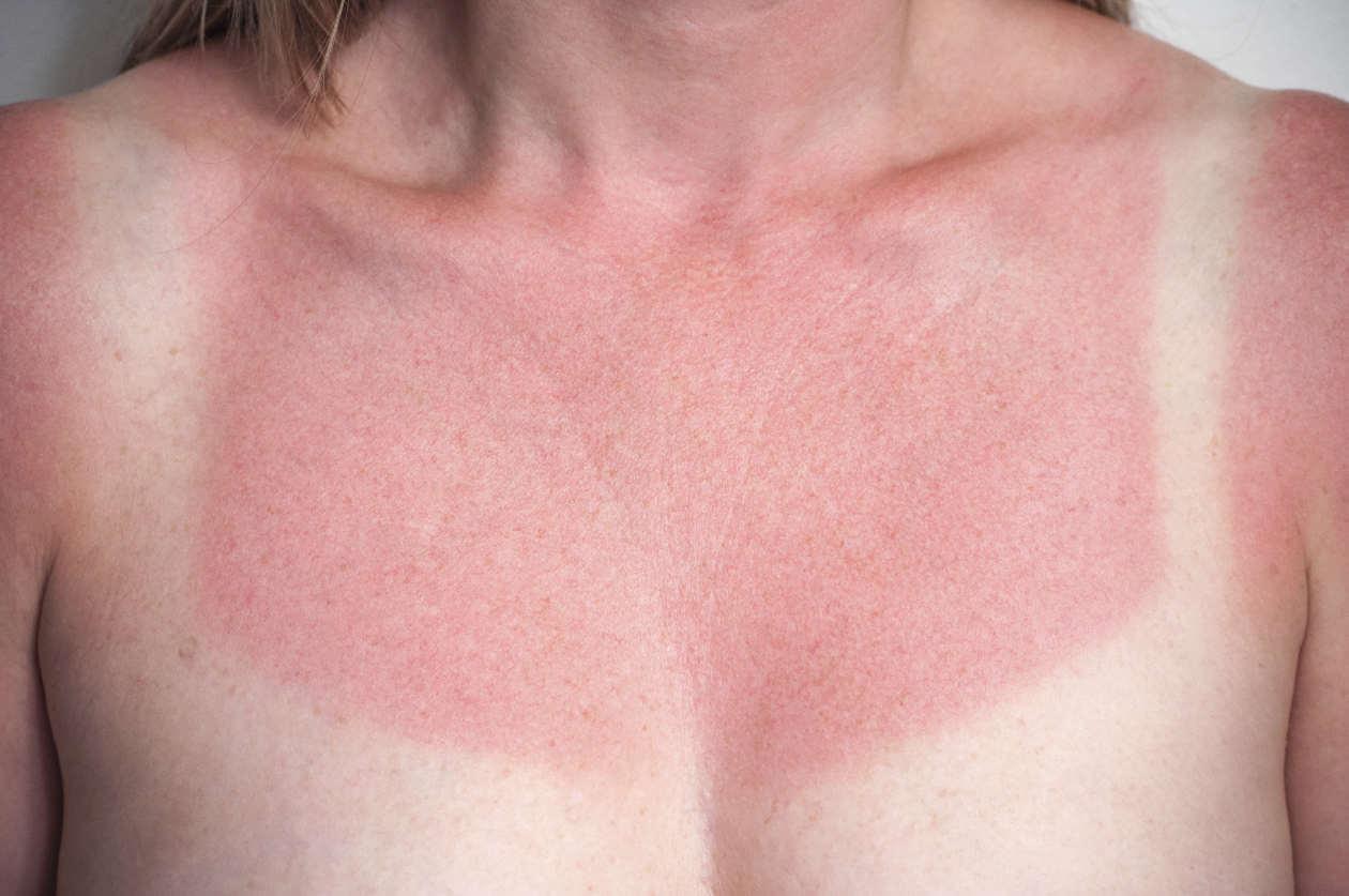 5 remedios caseros para atender de inmediato las quemaduras solares
