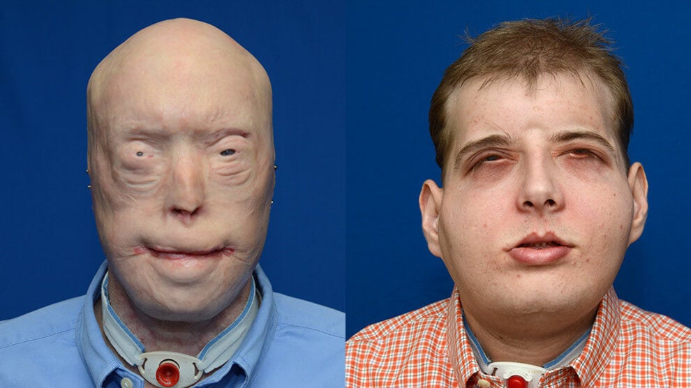 Un bombero de 41 años recibe el trasplante de cara más completo en la historia