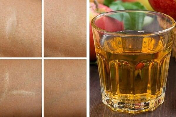 Tónico antioxidante para las arrugas, quemaduras del sol y cicatrices