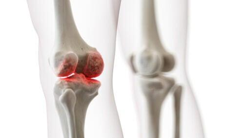 Fractura en el hueso de la pierna.