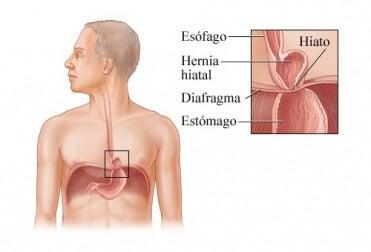 la hernia de hiato da dolor de cabeza