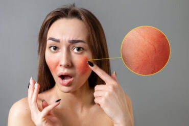 Tratamiento y recomendaciones para combatir la rosácea