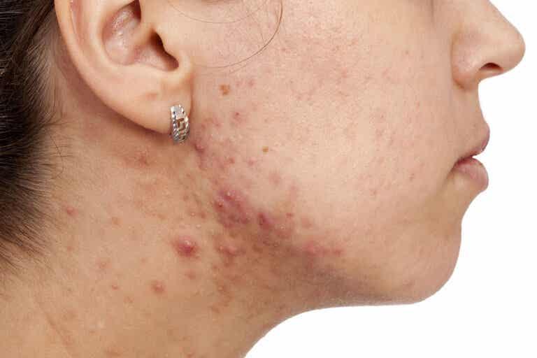 ¿Por qué se produce el acné en los adultos?