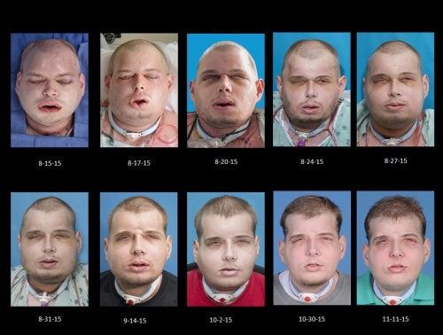 Operaciones para el trasplante de cara