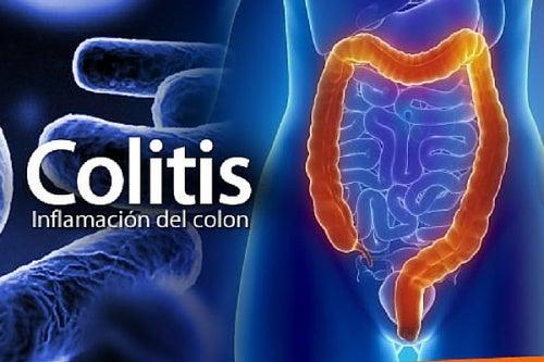 infección leve intestinal