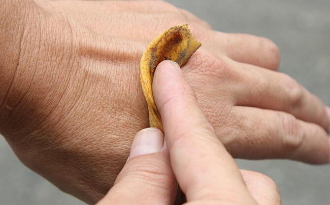 plátano para quitar las verrugas