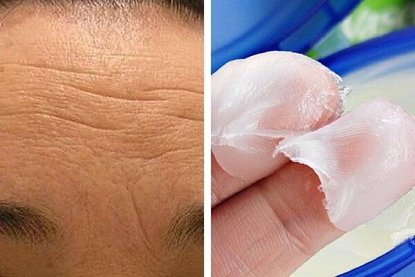 Cremas naturales para atenuar las arrugas de la frente