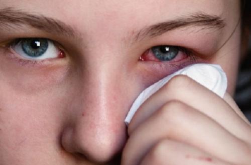 Fiebre del heno: 10 remedios para combatirla