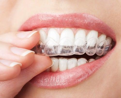 Cosas que hace tu cuerpo cuando estás profundamente dormido: rechinar los dientes