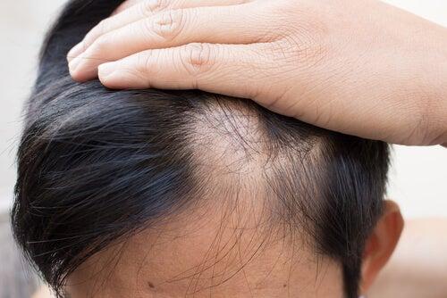alopecia areata, caida de cabello