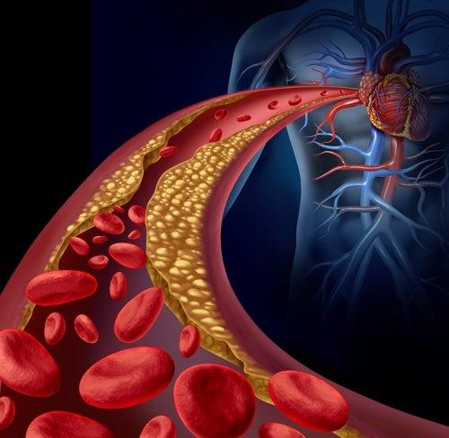 Arteria con aterosclerosis-hipertensión