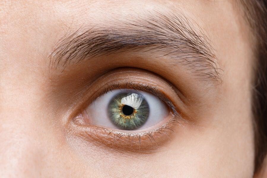 Síntomas del síndrome del ojo seco