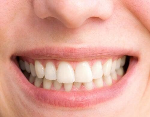 8 factores que vuelven los dientes amarillos