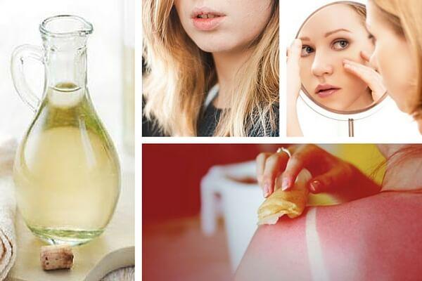 8 Usos Del Vinagre Blanco Descúbrelos Mejor Con Salud