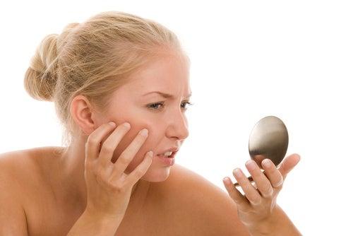 Elimina el acné con productos naturales