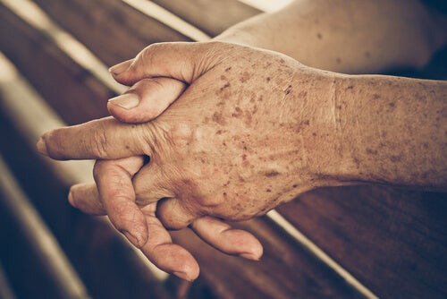 cuidados de la salud de la piel en la tercera edad