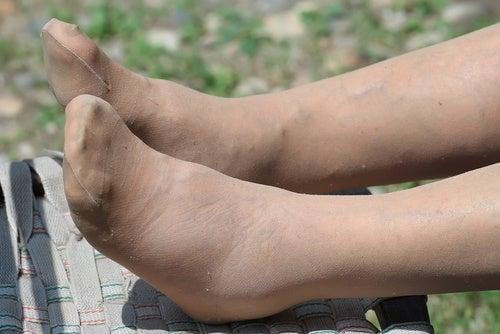 hinchazón de los pies