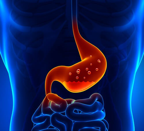 ¿Tienes acidez estomacal? Combátela con estos remedios caseros