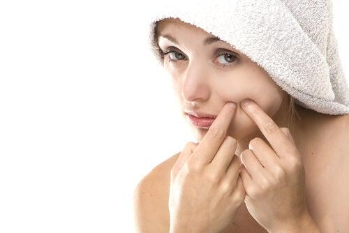 Elimina el acné definitivamente con estos 6 tips de belleza