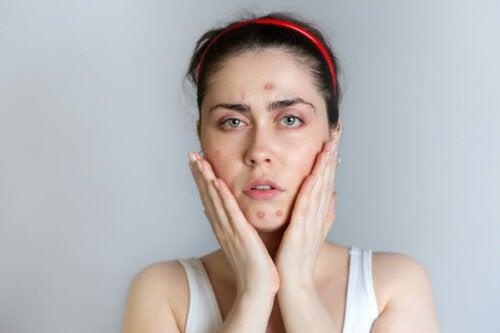 6 tips de belleza para pieles con acné