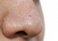 nariz con espinillas