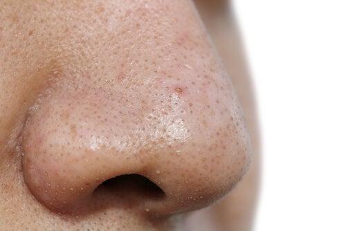 5 mascarillas faciales para remover las espinillas