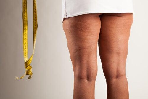 Obesidad tiroidea: Tips para combatirla
