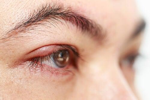 ¿Sabes lo que es la blefarocalasia? Combátela con remedios naturales