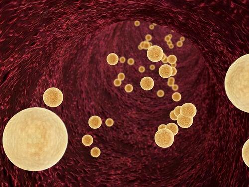 Triglicéridos en sangre