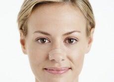 tiras nasales