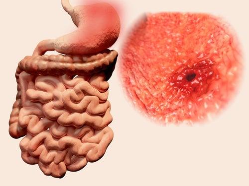 úlcera gástrica vacío en el estómago