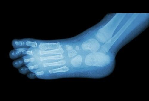 El-espolon-calcaneo-es-diagnosticado-mediante-radiografias