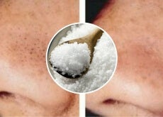 Cómo utilizar la sal para combatir los puntos negros y espinillas
