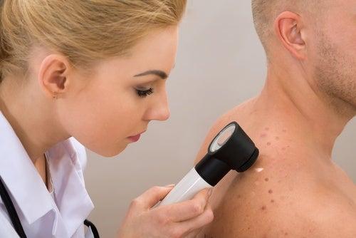Consulta a un dermatólogo