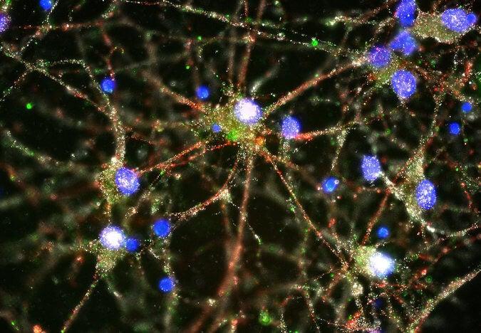 Los científicos estarían cada vez más cerca de comprender las causas de la esquizofrenia