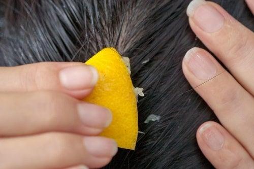 ¿Cómo combatir la caída del cabello con jugo de limón?