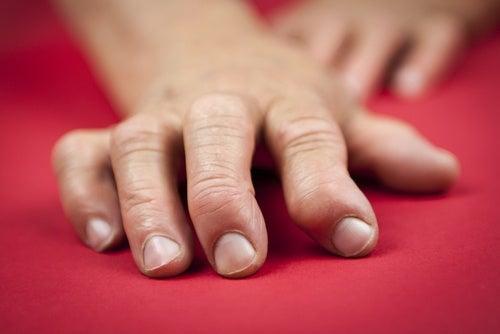 Lesiones en los dedos