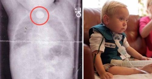 Conoce la historia de un bebé que sufrió daños irreparables por tragar una pila de botón
