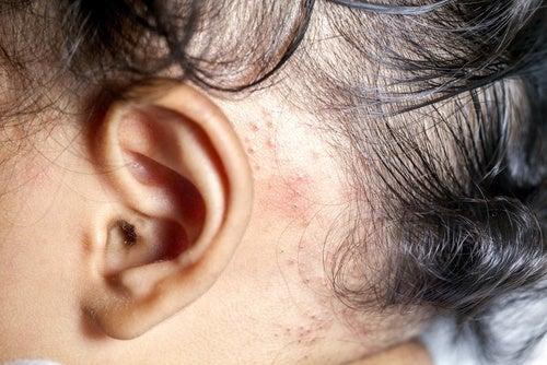Las pruebas a la psoriasis