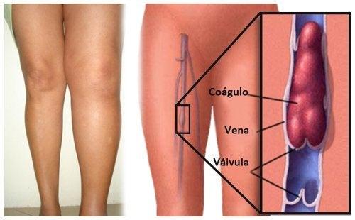Naturales coágulos embarazo formas durante prevenir de de sangre el