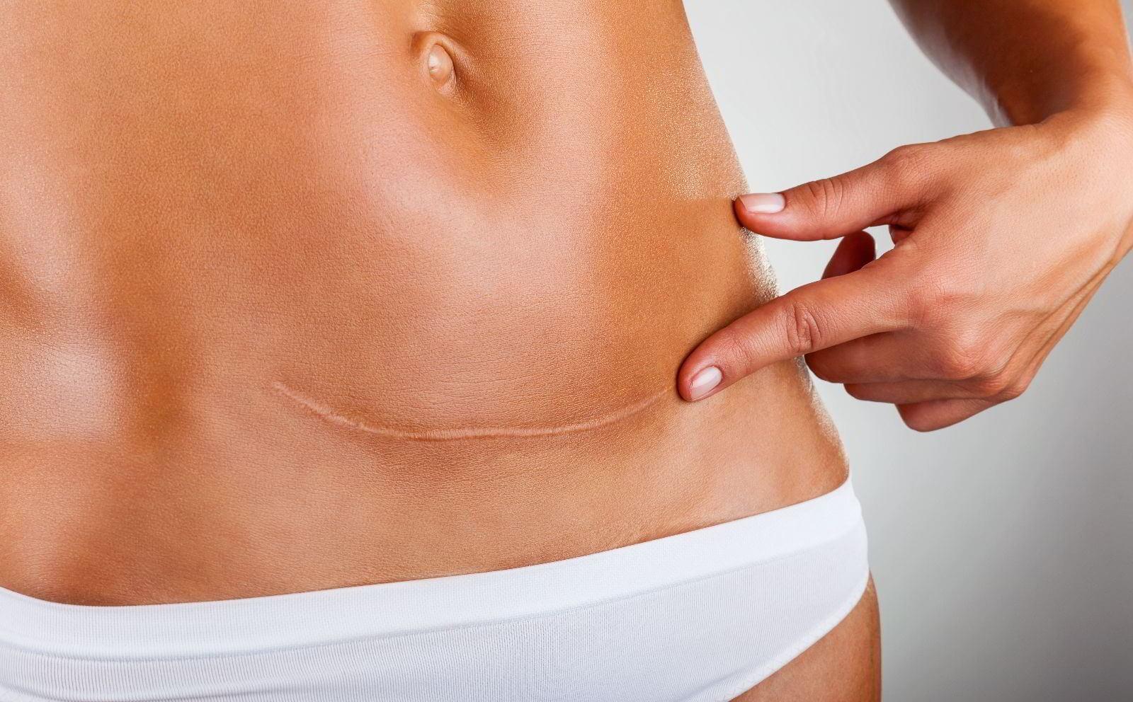 Cicatriz de parto por cesárea.