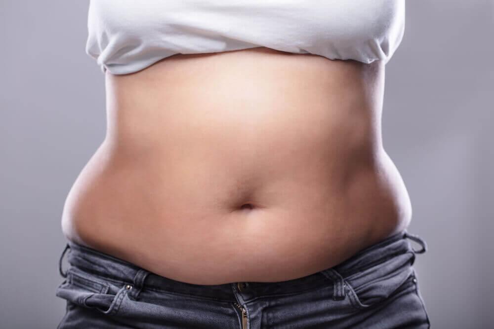 Abdomen sobrepeso