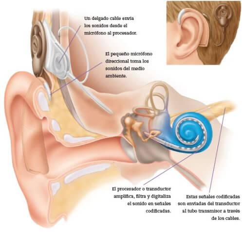 Representación gráfica de un implante coclear.