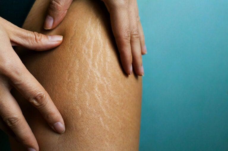 Combate las estrías con esta crema corporal casera
