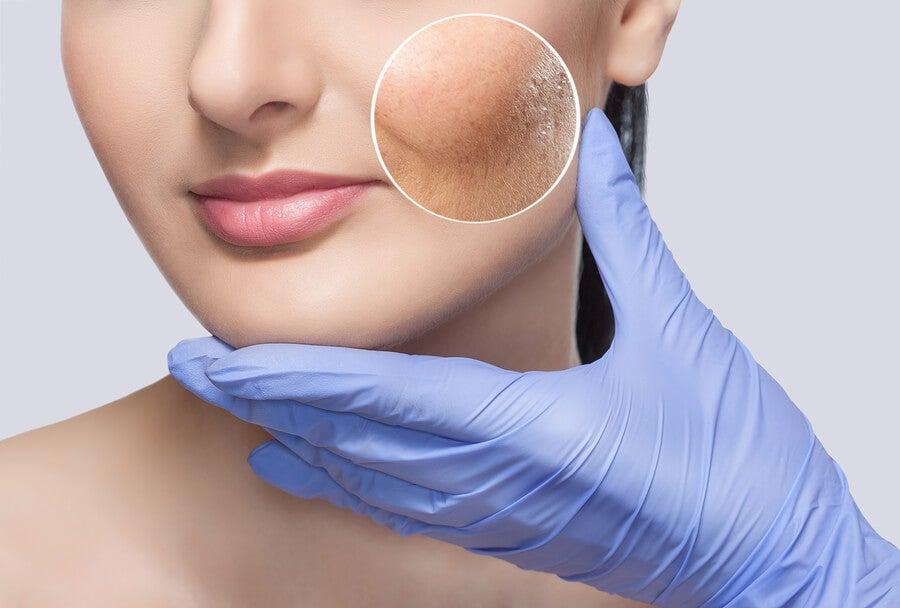 Tratamiento con tomate para la piel grasa