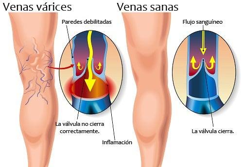 Diferencia entre una pierna sana y una con varices