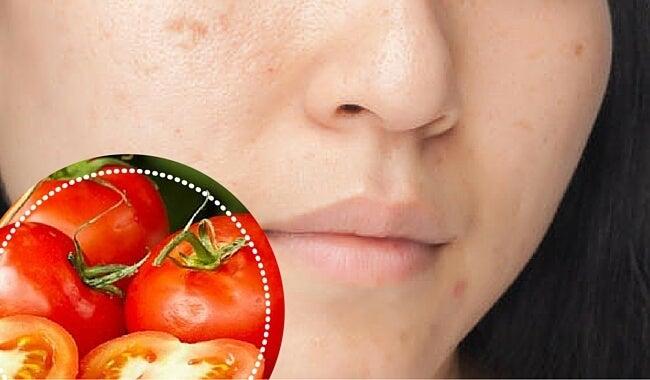 6 ingredientes naturales para atenuar las manchas en el rostro