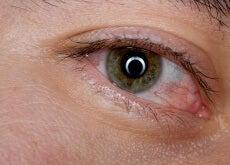 6 remedios caseros para calmar la sensación de ojos cansados