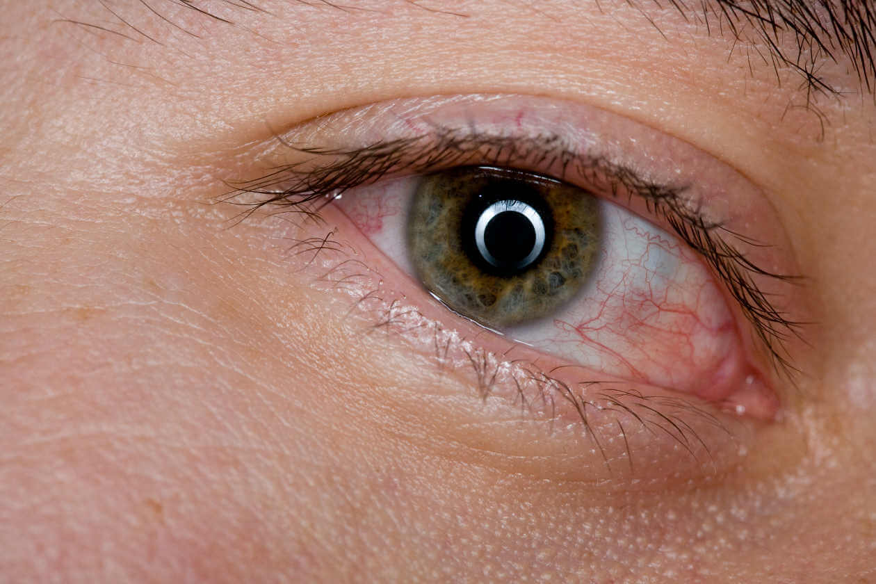 Ojos cansados: 6 remedios caseros para aliviarlos