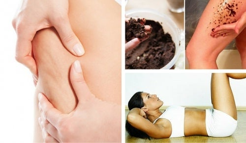 7 consejos para prevenir la celulitis